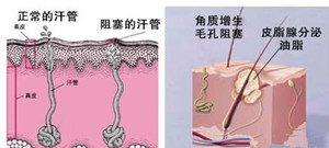 胸前长痘痘是什么原因?4大胸前长痘痘的原因