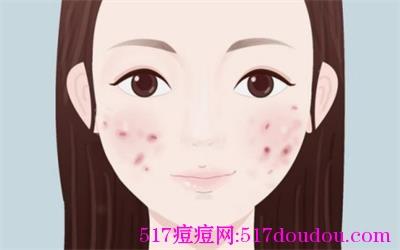 青春痘痘的类型有哪些?各种痘痘类型图片详解