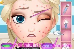 如何预防青春痘和日常应该注意什么?