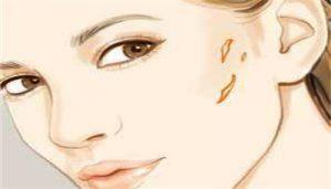 痘痘不留疤因做好哪些日常护理?