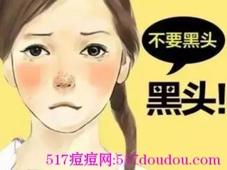 脸上长粉刺是什么原因?深度分析