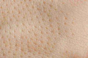 毛孔堵塞和毛孔粗大怎么办?有效解决毛孔粗大办法