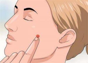 脸上的痘痘能摸么?