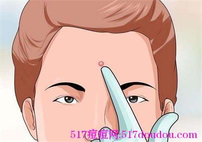 怎么消除脸上的粉刺?