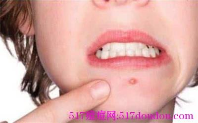 嘴周围长痘痘的原因有哪些?如何调理?