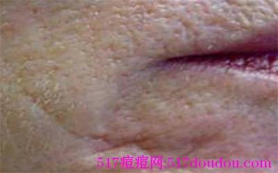 脸上有痘坑是怎么回事?痘坑有哪些分类?