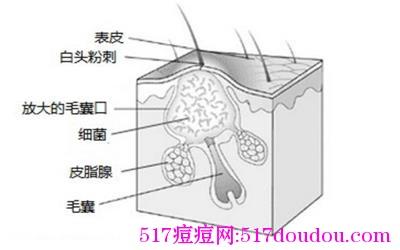 痘痘类型图解(祛痘必知!)