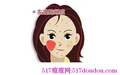 左脸长痘什么原因?