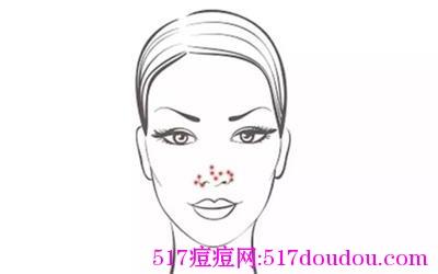 鼻翼长痘的原因是什么?鼻翼长痘痘怎么办?