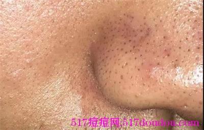 皮肤的分类有哪些?油性皮肤和敏感性皮肤护理技巧
